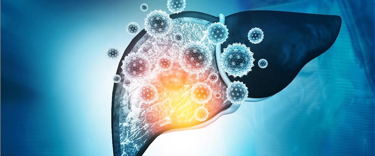Онлайн-конференция «Хронический гепатит. От диагностики к лечению»